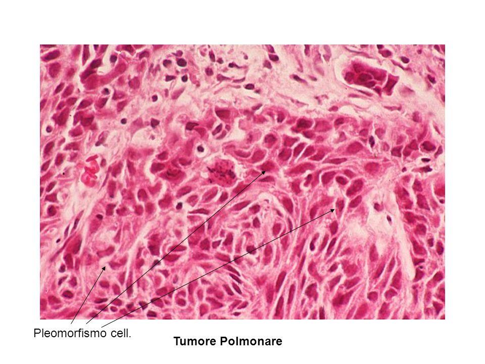 Tumore Polmonare Pleomorfismo cell.