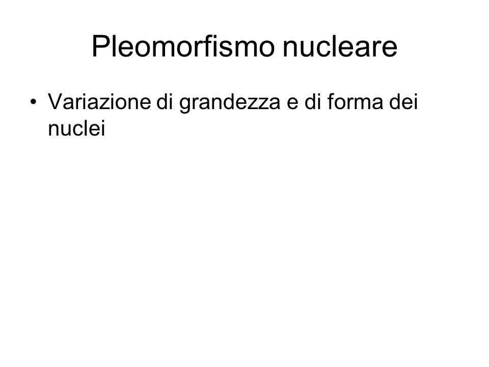 Pleomorfismo nucleare Variazione di grandezza e di forma dei nuclei