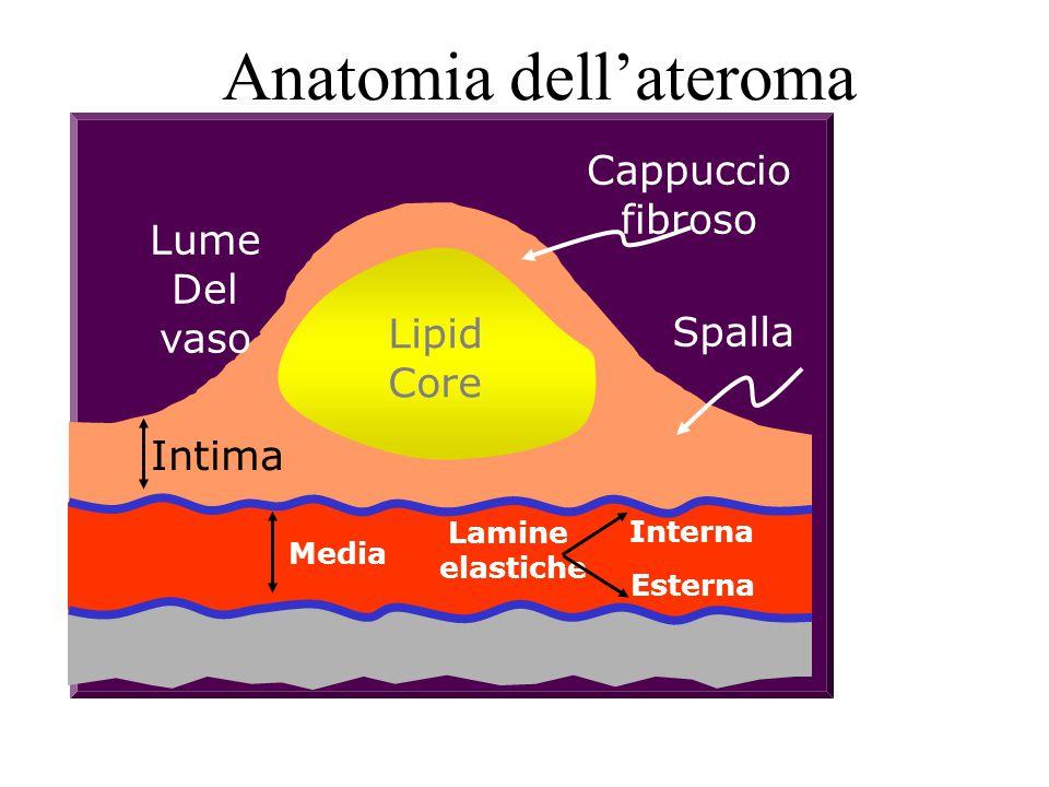 Anatomia dell'ateroma Lume Del vaso Lipid Core Cappuccio fibroso Spalla Intima Media Lamine elastiche Interna Esterna
