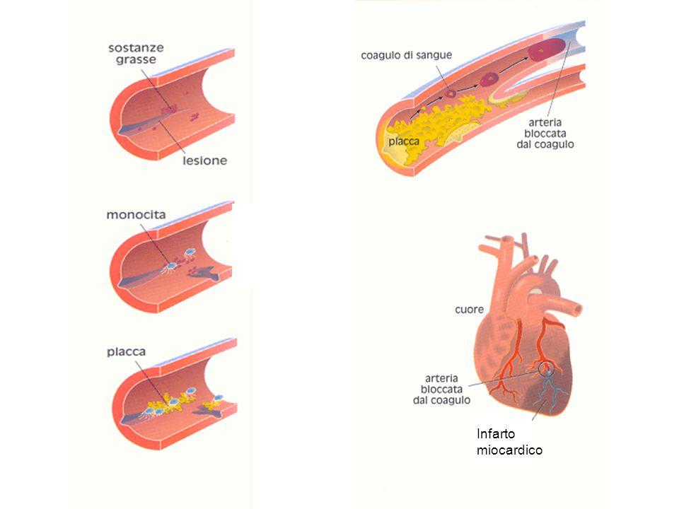 Infarto miocardico