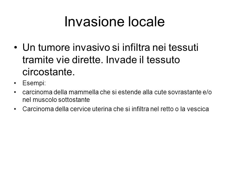 Invasione locale Un tumore invasivo si infiltra nei tessuti tramite vie dirette.