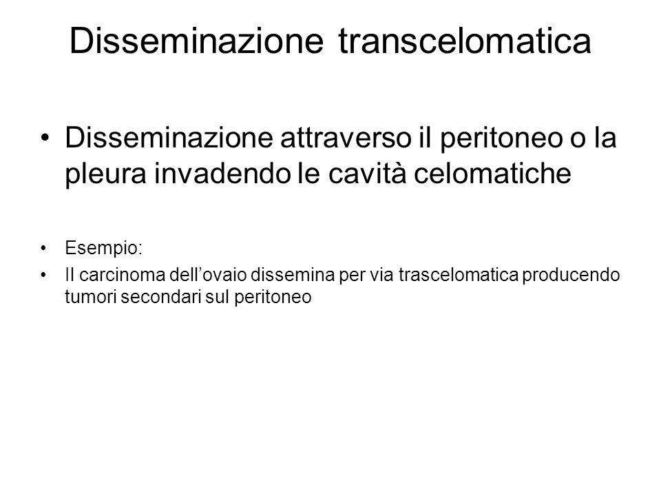 Disseminazione transcelomatica Disseminazione attraverso il peritoneo o la pleura invadendo le cavità celomatiche Esempio: Il carcinoma dell'ovaio dissemina per via trascelomatica producendo tumori secondari sul peritoneo