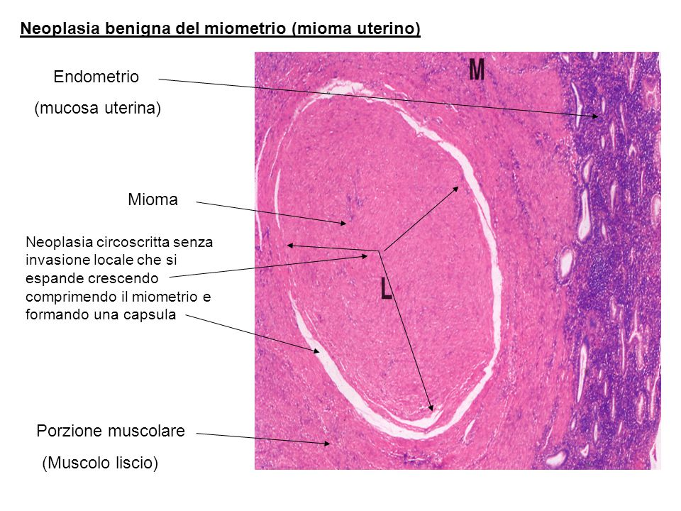 Neoplasia benigna del miometrio (mioma uterino) Endometrio (mucosa uterina) Porzione muscolare Mioma (Muscolo liscio) Neoplasia circoscritta senza invasione locale che si espande crescendo comprimendo il miometrio e formando una capsula