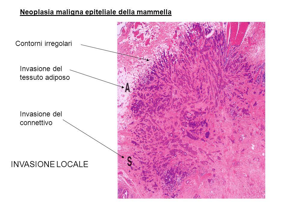 Neoplasia maligna epiteliale della mammella Contorni irregolari Invasione del tessuto adiposo Invasione del connettivo INVASIONE LOCALE