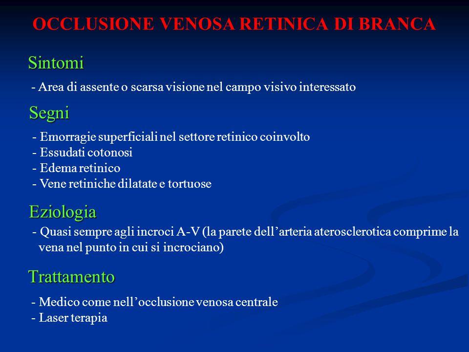 OCCLUSIONE VENOSA RETINICA DI BRANCA Sintomi - Area di assente o scarsa visione nel campo visivo interessato Segni - Emorragie superficiali nel settor