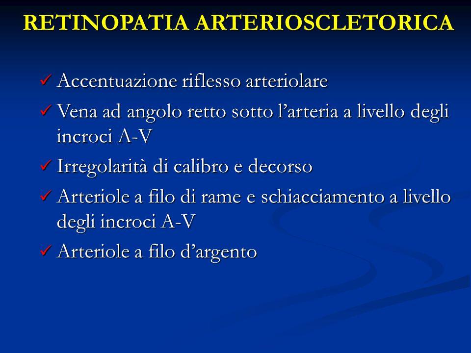 RETINOPATIA ARTERIOSCLETORICA Accentuazione riflesso arteriolare Accentuazione riflesso arteriolare Vena ad angolo retto sotto l'arteria a livello deg