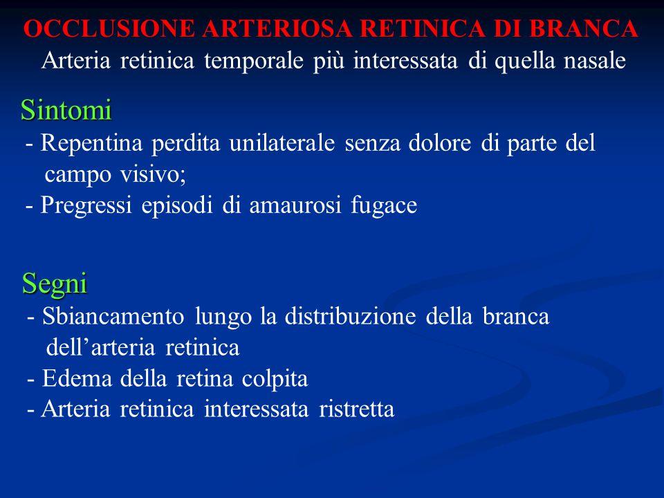 OCCLUSIONE ARTERIOSA RETINICA DI BRANCA Sintomi - Repentina perdita unilaterale senza dolore di parte del campo visivo; - Pregressi episodi di amauros