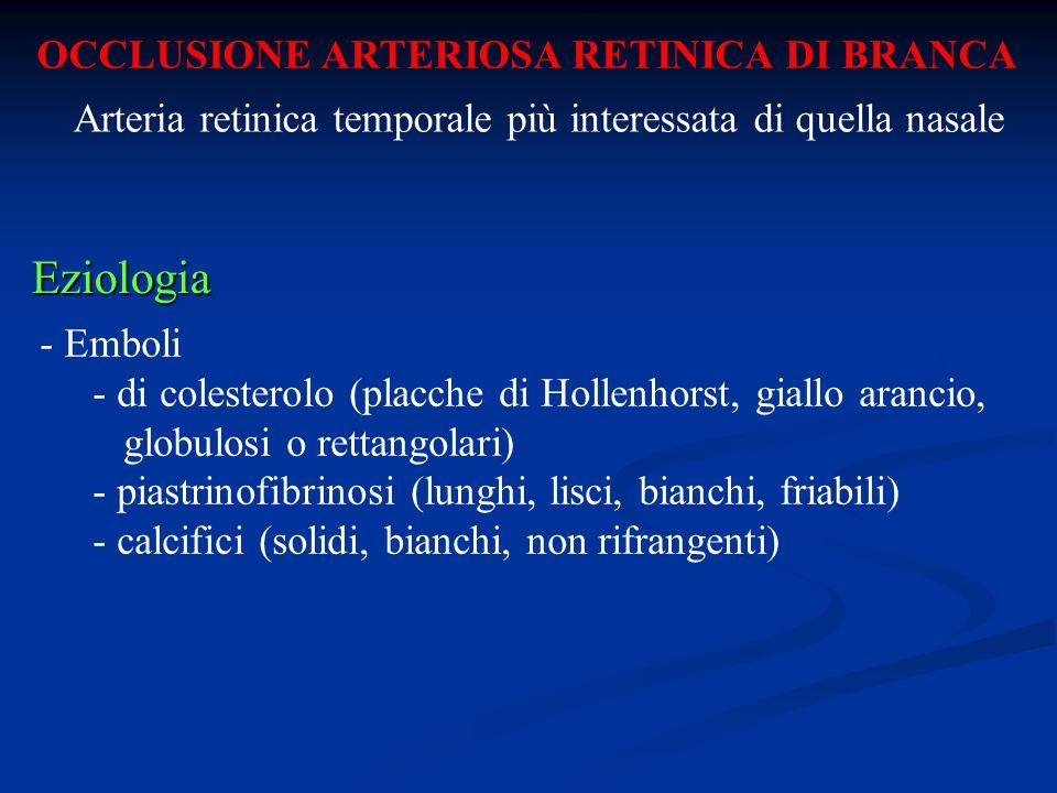 OCCLUSIONE ARTERIOSA RETINICA DI BRANCA Eziologia - Emboli - di colesterolo (placche di Hollenhorst, giallo arancio, globulosi o rettangolari) - piast