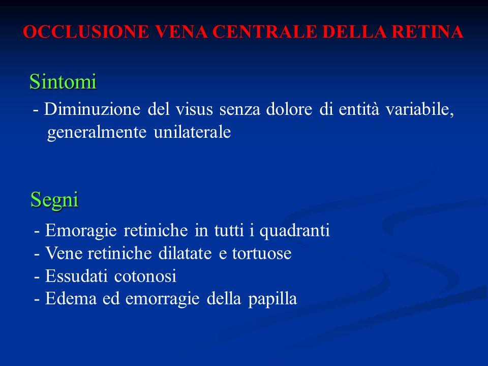 OCCLUSIONE VENA CENTRALE DELLA RETINA Sintomi - Diminuzione del visus senza dolore di entità variabile, generalmente unilaterale Segni - Emoragie reti