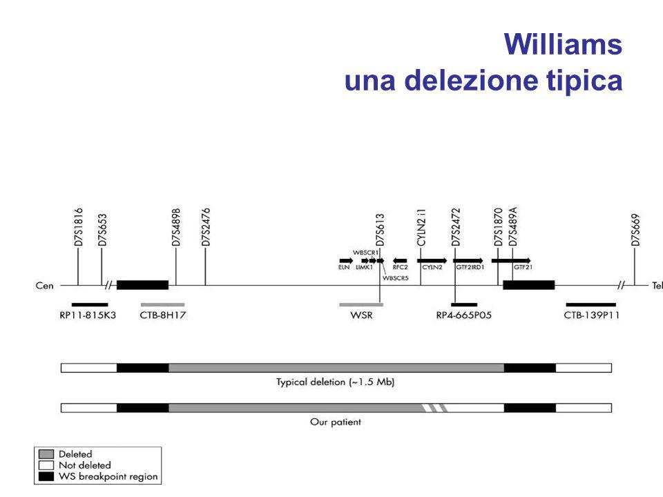 Williams una delezione tipica