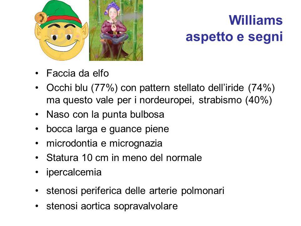 Williams aspetto e segni Faccia da elfo Occhi blu (77%) con pattern stellato dell'iride (74%) ma questo vale per i nordeuropei, strabismo (40%) Naso c