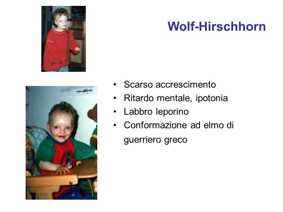 Wolf-Hirschhorn Scarso accrescimento Ritardo mentale, ipotonia Labbro leporino Conformazione ad elmo di guerriero greco