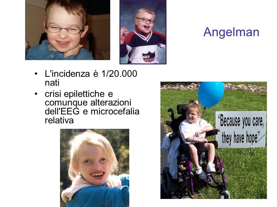 L'incidenza è 1/20.000 nati crisi epilettiche e comunque alterazioni dell'EEG e microcefalia relativa Angelman