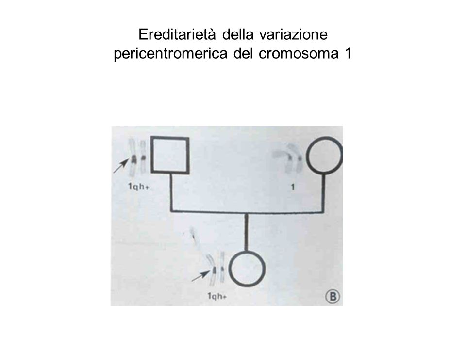 Ereditarietà della variazione pericentromerica del cromosoma 1