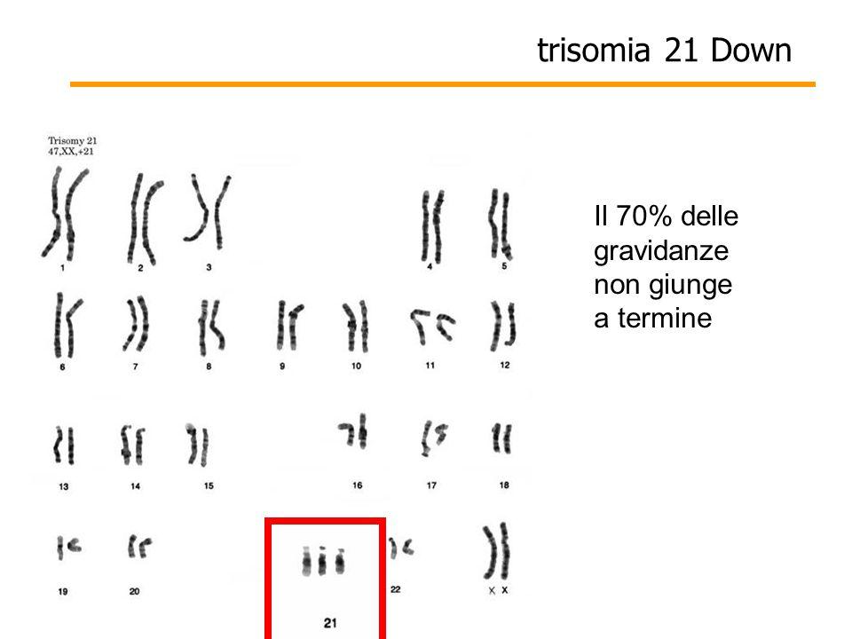 Il 70% delle gravidanze non giunge a termine trisomia 21 Down