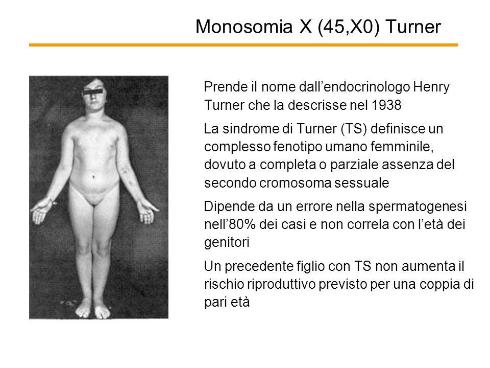 Monosomia X (45,X0) Turner Prende il nome dall'endocrinologo Henry Turner che la descrisse nel 1938 La sindrome di Turner (TS) definisce un complesso