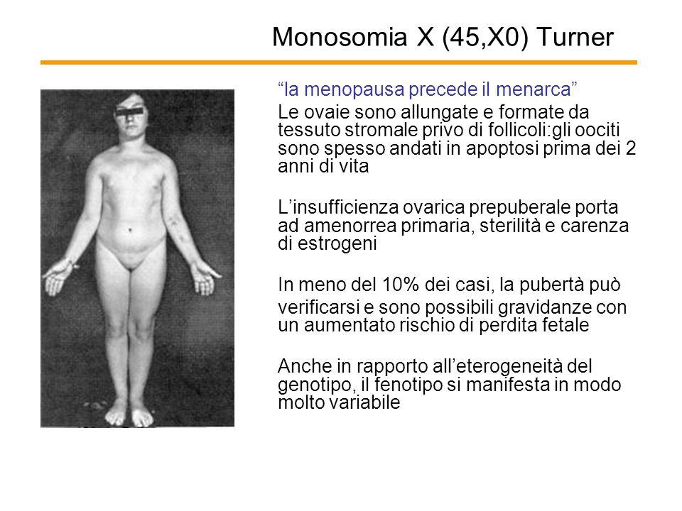 """Monosomia X (45,X0) Turner """"la menopausa precede il menarca"""" Le ovaie sono allungate e formate da tessuto stromale privo di follicoli:gli oociti sono"""