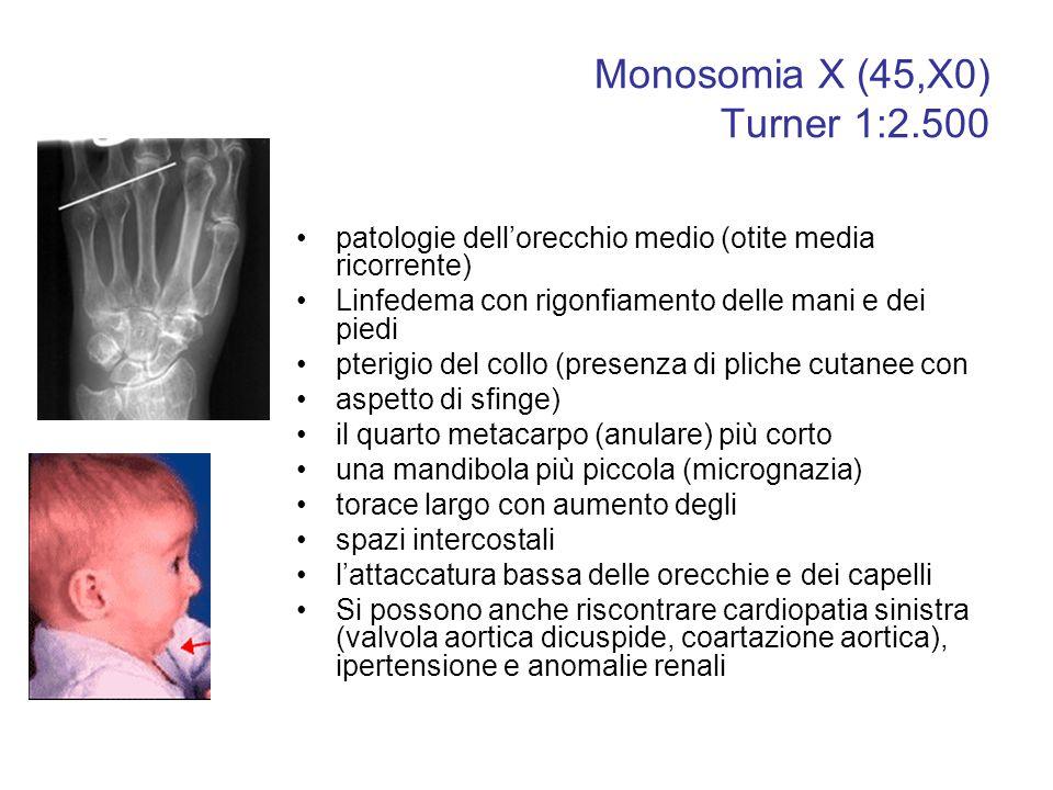Monosomia X (45,X0) Turner 1:2.500 patologie dell'orecchio medio (otite media ricorrente) Linfedema con rigonfiamento delle mani e dei piedi pterigio