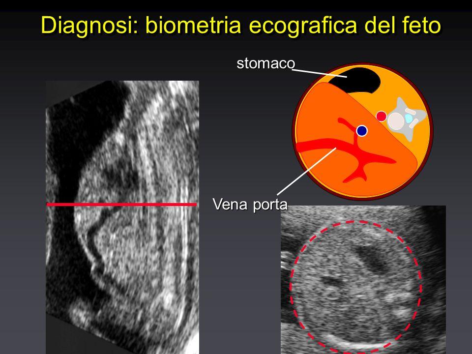 stomaco Vena porta Diagnosi: biometria ecografica del feto