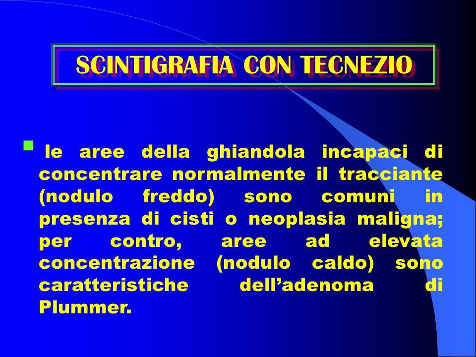  le aree della ghiandola incapaci di concentrare normalmente il tracciante (nodulo freddo) sono comuni in presenza di cisti o neoplasia maligna; per