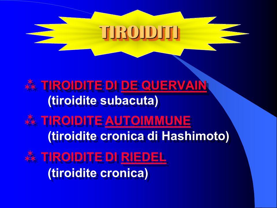 TIROIDITITIROIDITI TIROIDITE DI DE QUERVAIN  TIROIDITE DI DE QUERVAIN (tiroidite subacuta)  TIROIDITE AUTOIMMUNE (tiroidite cronica di Hashimoto)  TIROIDITE DI RIEDEL (tiroidite cronica) TIROIDITE DI DE QUERVAIN  TIROIDITE DI DE QUERVAIN (tiroidite subacuta)  TIROIDITE AUTOIMMUNE (tiroidite cronica di Hashimoto)  TIROIDITE DI RIEDEL (tiroidite cronica)