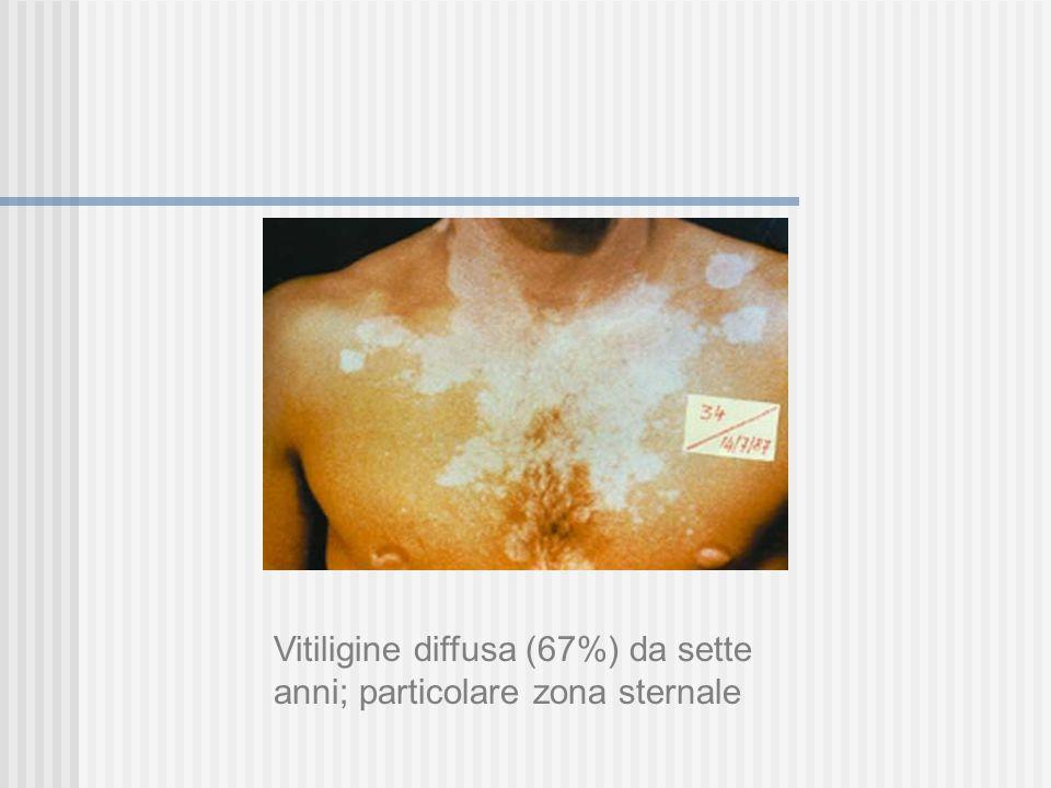 Vitiligine La vitiligine ha spesso un'incidenza familiare (13-15% dei casi). Le ricerche genetiche riportano correlazioni significative con HLA-A2, HL