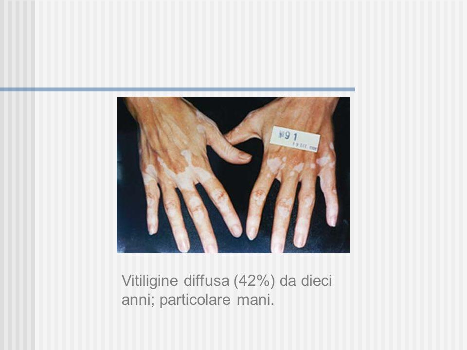 Vitiligine diffusa (67%) da sette anni; particolare zona sternale