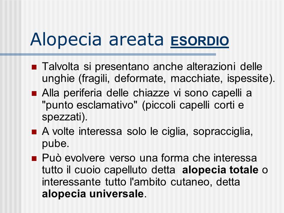Alopecia areata ESORDIO E' una dermatosi caratterizzata solitamente dalla improvvisa apparizione di chiazze tondeggianti di diametro di circa 3 cm, co