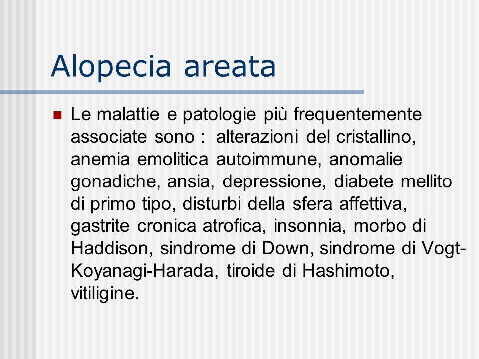 Alopecia areata Le malattie e patologie più frequentemente associate sono : alterazioni del cristallino, anemia emolitica autoimmune, anomalie gonadiche, ansia, depressione, diabete mellito di primo tipo, disturbi della sfera affettiva, gastrite cronica atrofica, insonnia, morbo di Haddison, sindrome di Down, sindrome di Vogt- Koyanagi-Harada, tiroide di Hashimoto, vitiligine.