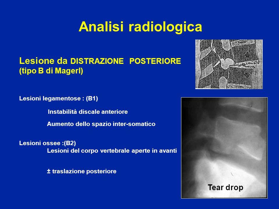 Lesione da ROTAZIONE (tipo C di Magerl) Scivolamento delle spinose Lussazione articolare unilaterale Deformità rotatoria dei corpi vertebrali (asimmetria) Analisi radiologica