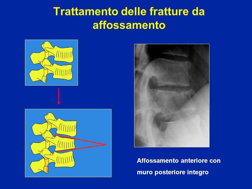 Quali sono le due possibili eventualità di fronte ad una frattura stabile da affossamento anteriore semplice lombare del 20% ?