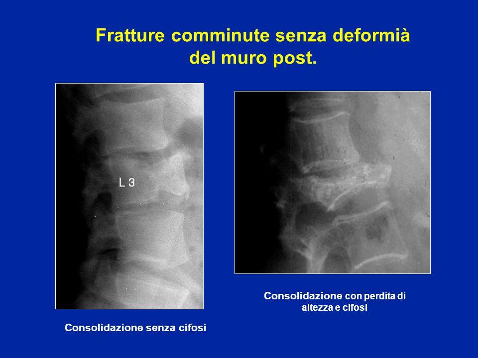 Esiti frequenti di fratture comminute: cifosi Consolidazione ottenuta con perdita di altezza e cifosi L2 D7
