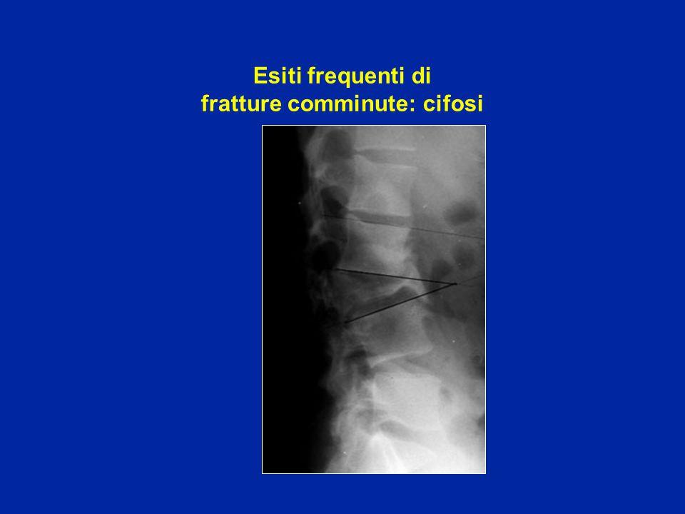 Esiti di fratture comminute trattate ortopedicamente