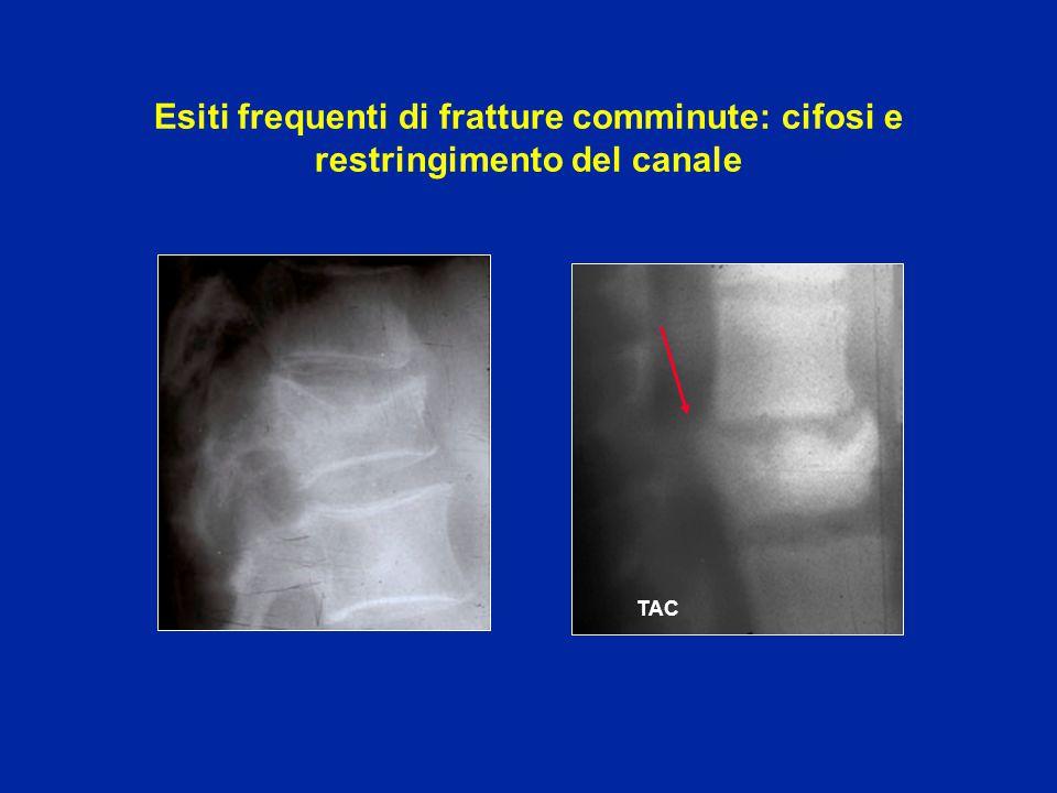 In questo esempio c'é il disco espulso indietro che comprime il midollo Compressione con dei frammenti ossei Il trattamento delle fratture comminute con disturbi neurologici é chirurgico