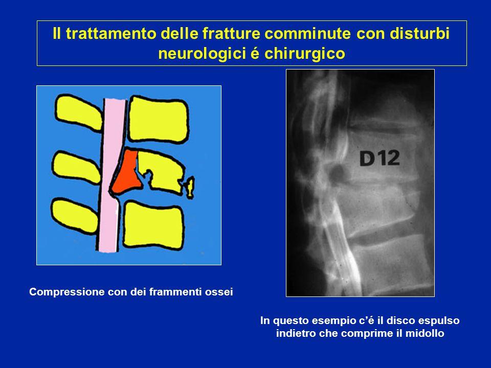 Fratture comminute Lussazione Elementi compressivi del canale midollare ben evidenziati con TAC e RMN