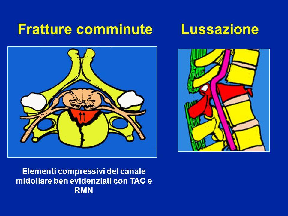 Fratture comminute Elementi compressivi del canale midollare ben evidenziati con TAC e RMN