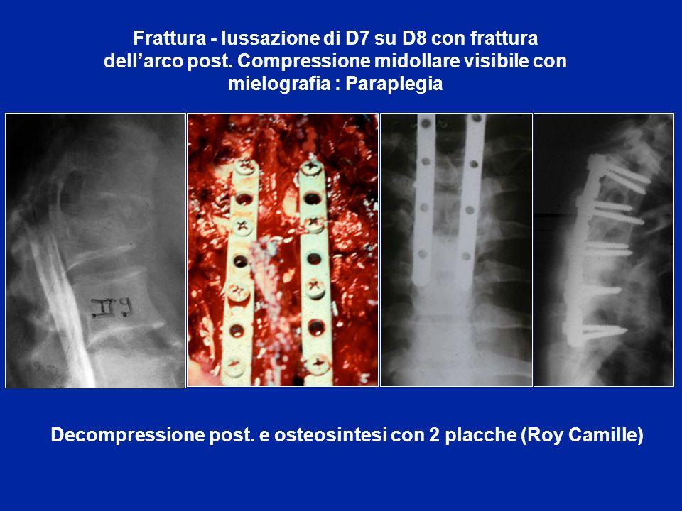 Riduzione di una lussazione L5-S1 e osteosinresi con 2 placche + artrodesi intersomatica realizzata con la stessa via