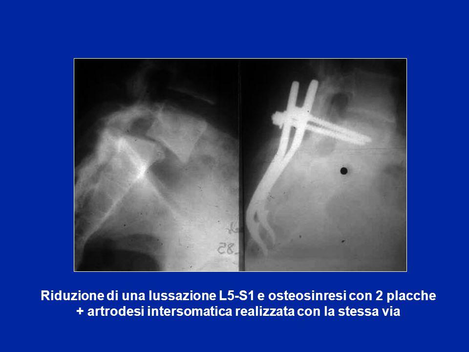 Lussazione L4-L5 trattata con osteosintesi con 2 placche post.