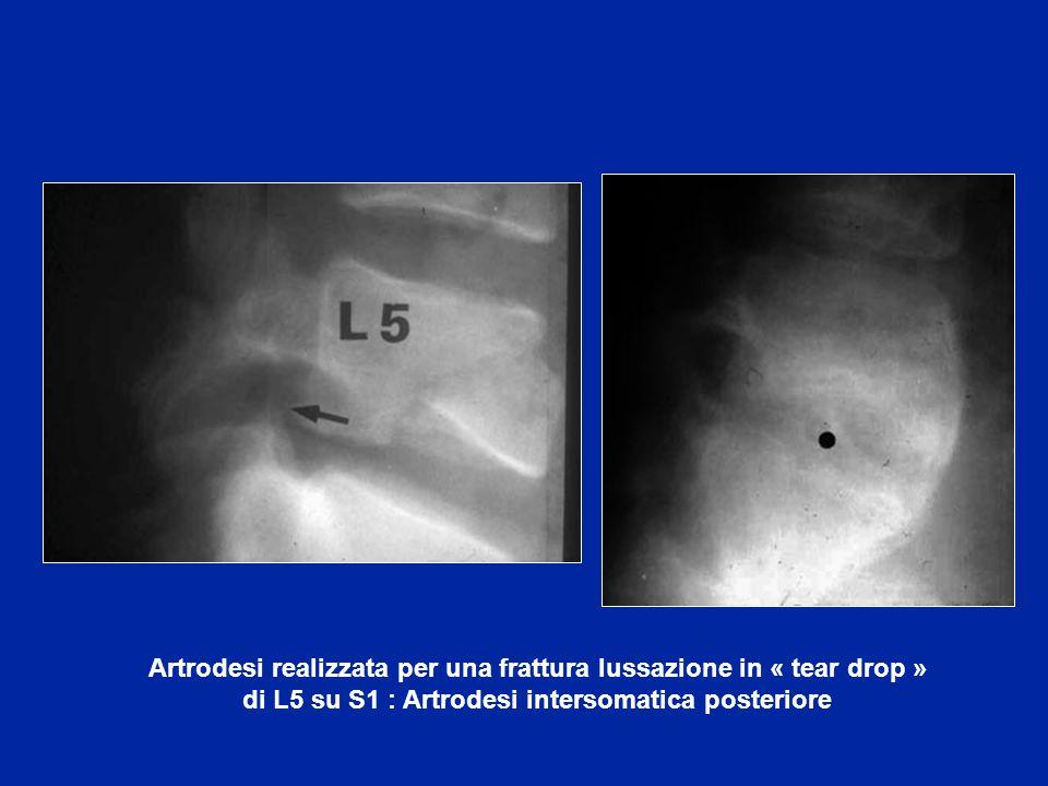 Osteosintesi con compressione posteriore per le lesioni in distrazione posteriore
