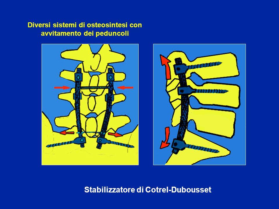 Stabilizzatore di Kluger Diversi sistemi di osteosintesi con avvitamento dei peduncoli