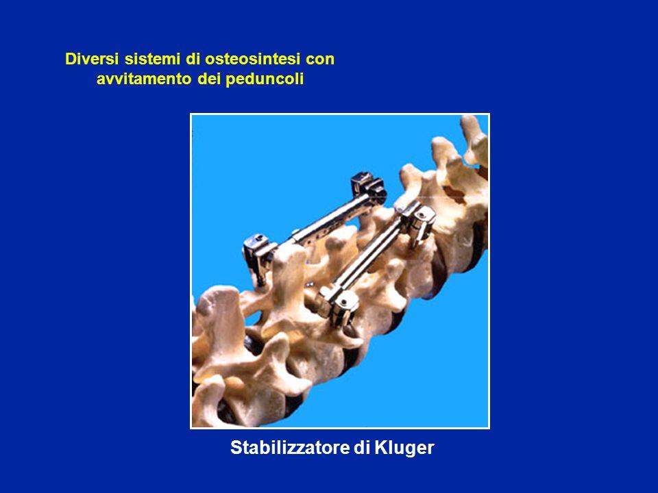 Stabilizzatore dell'Ospedale Tenon Diversi sistemi di osteosintesi con avvitamento dei peduncoli