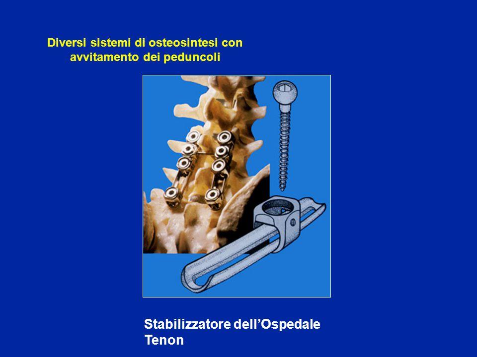 Correzine dei calli viziosi evolutivi in cifosi con stenosi del canalle midollare Vertebrectomia anteriore e trapianto osseo dopo distrazione