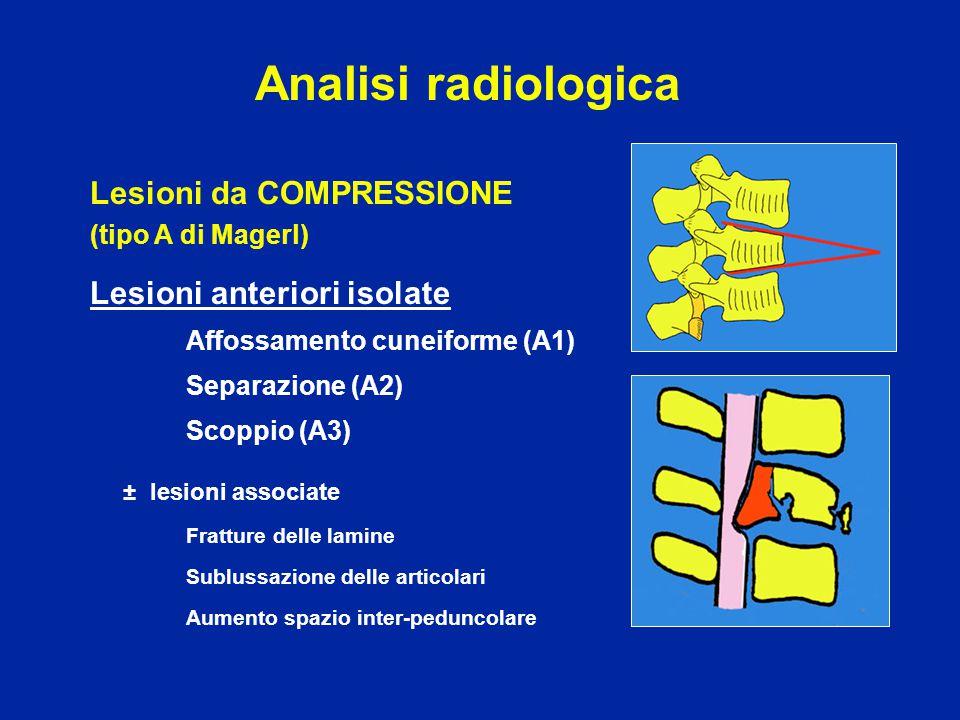 Lesioni da COMPRESSIONE (tipo A di Magerl) Lesioni anteriori isolate