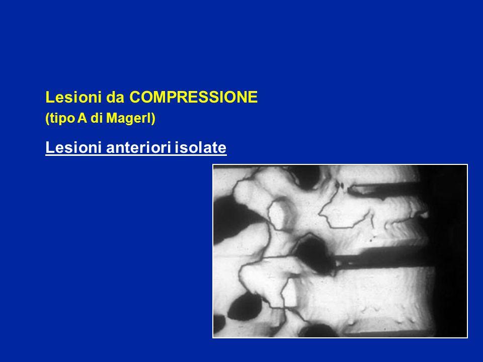 Lesione da DISTRAZIONE POSTERIORE (tipo B di Magerl) Lesioni legamentose : (B1) aumento dello spazio inter-spinoso sublussazione delle articolari Lesioni ossee : (B2) # orizzontale delle lame e dell'istmo aumento muro vertebrale post.