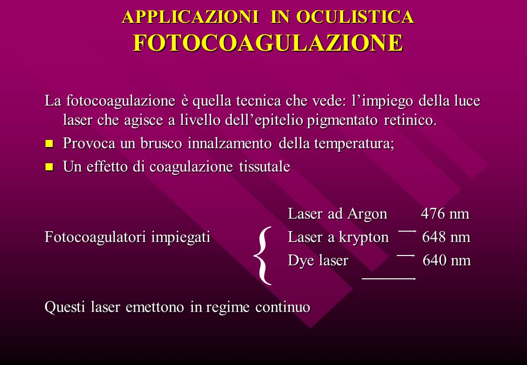 APPLICAZIONI IN OCULISTICA FOTOCOAGULAZIONE La fotocoagulazione è quella tecnica che vede: l'impiego della luce laser che agisce a livello dell'epitel