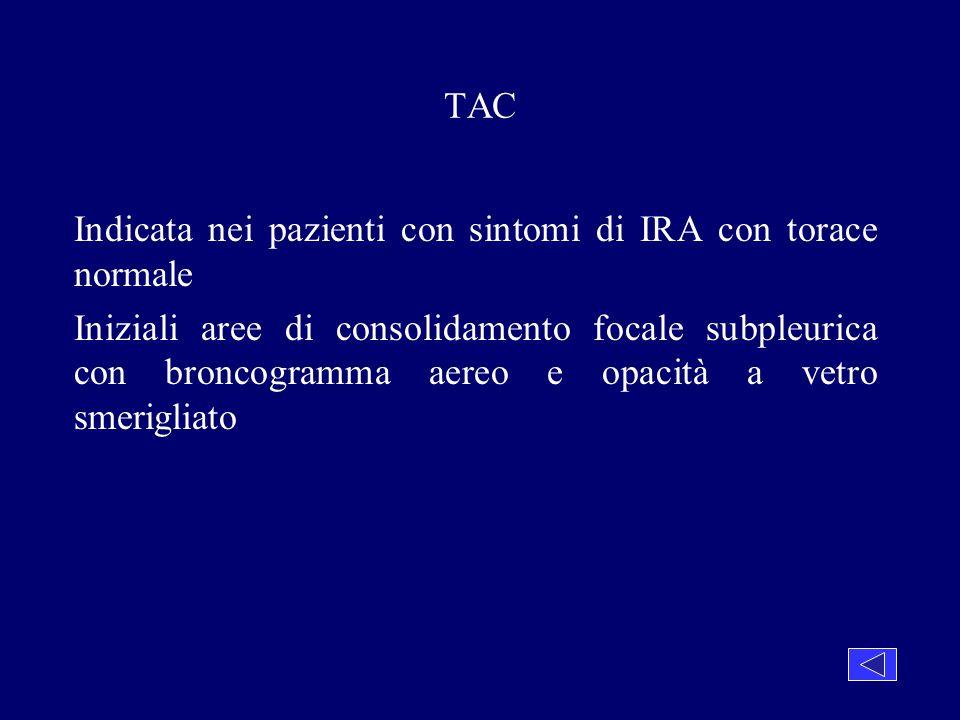 TAC Indicata nei pazienti con sintomi di IRA con torace normale Iniziali aree di consolidamento focale subpleurica con broncogramma aereo e opacità a
