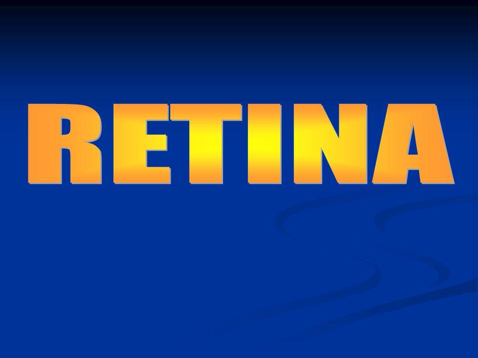 DISTACCO DI RETINA Separazione della retina sensoriale dall'epitelio pigmentato retinico Primario 1) RegmatogenoSecondario 1) Trazionale 2) Essudativo 3) Solido