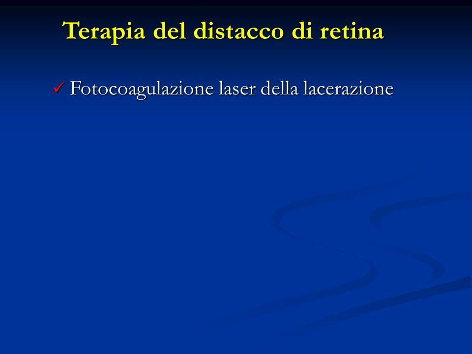 Terapia del distacco di retina Fotocoagulazione laser della lacerazione Fotocoagulazione laser della lacerazione