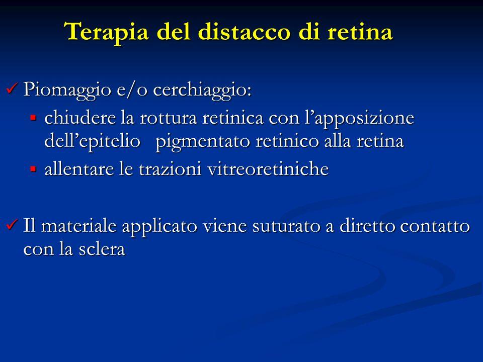 Piomaggio e/o cerchiaggio: Piomaggio e/o cerchiaggio:  chiudere la rottura retinica con l'apposizione dell'epitelio pigmentato retinico alla retina 