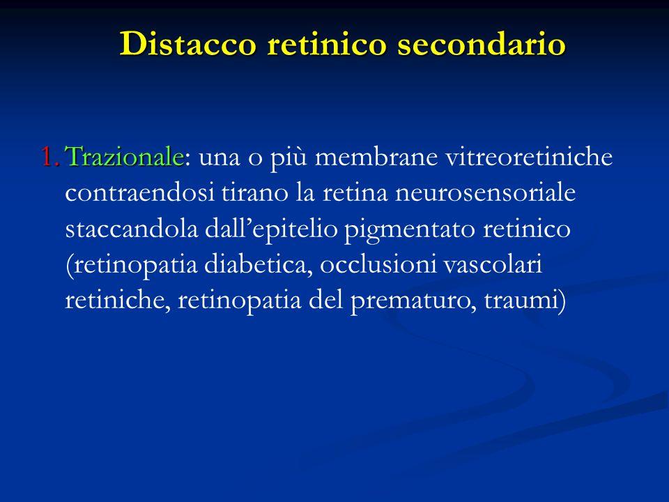 1.Trazionale 1.Trazionale: una o più membrane vitreoretiniche contraendosi tirano la retina neurosensoriale staccandola dall'epitelio pigmentato retin